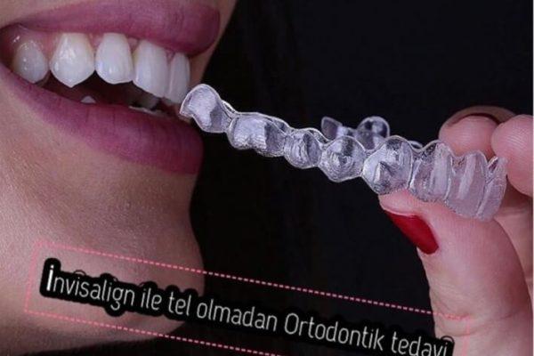 İnvisalign Tedavisi ( Şeffaf Plaklar ile Ortodontik Tedavi)
